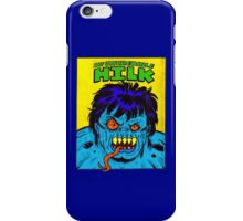 The Uncredible Hilk iPhone Case/Skin