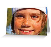 Gavin: 2092 Freckles Greeting Card