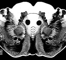 Brilliant Bones by limerick