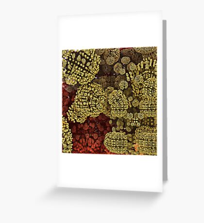 Brass Buttons Greeting Card