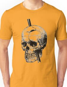 The Skull of Phineas Gage Vintage Illustration Vector Unisex T-Shirt