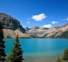 Bow Lake by Elizabeth Faulkner LRPS