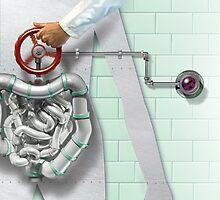 Eradicating colon cancer by Jim rownd