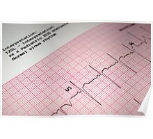 Pediatric Electrocardiogram. Poster