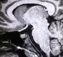 MRI Brain Sticker