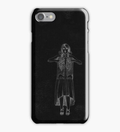 Black Exposure , Girl with Xray in dress and heels with ribcage iPhone Case/Skin