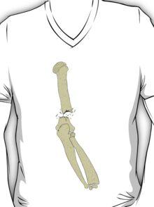 Broke My Humerus T-Shirt