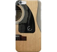 Acoustic Beauty - iPhone Case iPhone Case/Skin