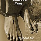 His nailed scarred Feet by Susan Blevins
