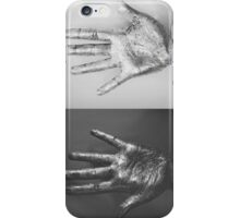 Ten Fingers iPhone Case/Skin