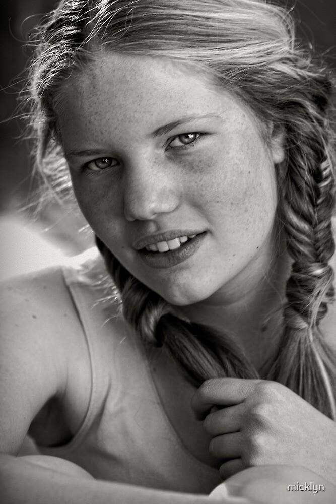 Freckles by micklyn