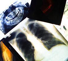 X-Rays  by Nina  Matthews Photography