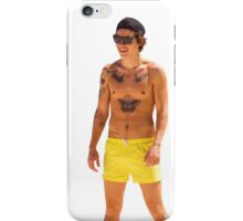 Harry Styles - Yellow Shorts iPhone Case/Skin