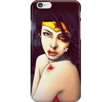 You Should See the Other Guy iPhone Case/Skin