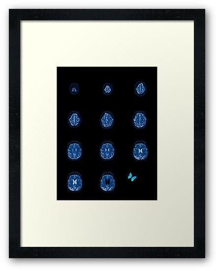 Brain flutters by Dylan DeLosAngeles