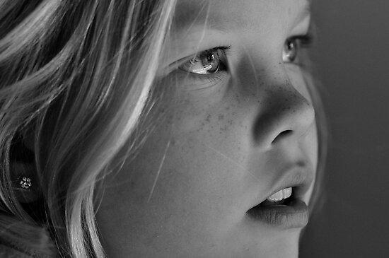 freckles by Jari Hudd