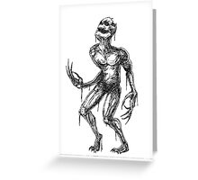Why Me? Greeting Card