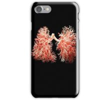 Real lungs - Respiratory system iPhone Case/Skin