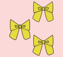 Yellow Bows to cover any holes..... by Claudia J.