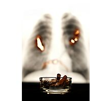 Smoking WILL kill you Photographic Print