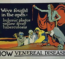 Weve fought in the open bubonic plague yellow fever tuberculosis now venereal diseases by wetdryvac