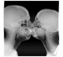 X-ray of a couple kissing Poster