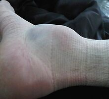 Sprain - Central Urgent Medical Care by centralurgenetm