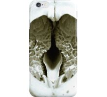 Badger's Brains iPhone Case/Skin