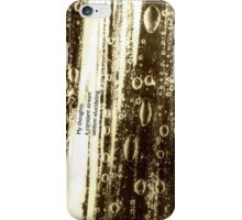 Time for some zen... iPhone Case/Skin
