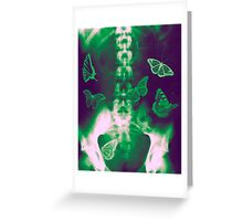 Butterflies in the stomach - x-ray  Greeting Card