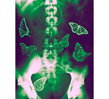 Butterflies in the stomach - x-ray  Photographic Print