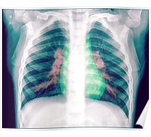 Chest x-ray of a 3 year old female baby Poster