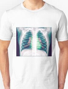 Chest x-ray of a 3 year old female baby T-Shirt