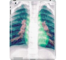 Chest x-ray of a 3 year old female baby iPad Case/Skin