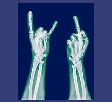 x-ray of a human hand making obscene hand gestures  Unisex T-Shirt