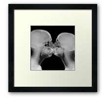 X-ray of a couple kissing Framed Print