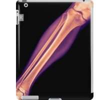 X-ray of the lower leg with a fractured tibia side view iPad Case/Skin