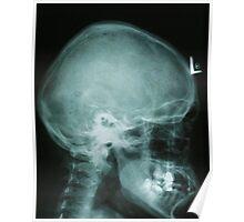 x-ray skull of human Poster