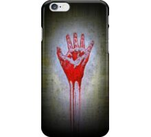 """Red Hand"" iPhone Case/Skin"