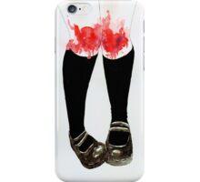 Kneecaps iPhone Case/Skin