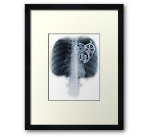 BiKE LOVE X Ray bicycle heart components Framed Print