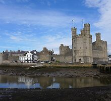 Caernarfon Castle. by Anna Myerscough