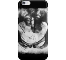 Albert Fish X-Ray iPhone Case/Skin