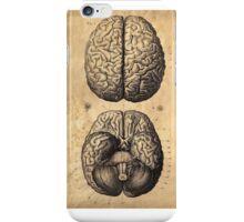 Victorian Brain Sketch iPhone Case/Skin