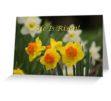 My Easter Card to you! Greeting Card