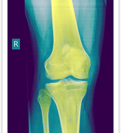 Knee x-ray front view Sticker