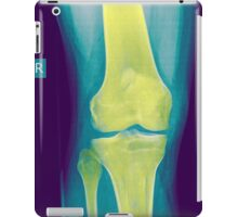 Knee x-ray front view iPad Case/Skin