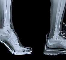 X-ray of a woman's foot in 4 different shoes by PhotoStock-Isra