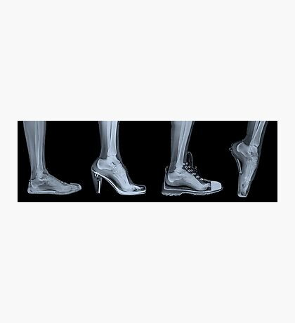 X-ray of a woman's foot in 4 different shoes Photographic Print