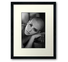 Bald girl Framed Print